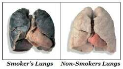 Actual human lungs - photo#25
