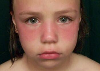 image: girl sunburned