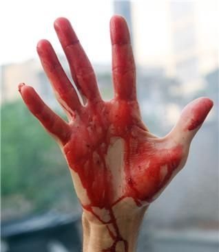 The bloody hand of a protester underscores the commitment of the Persian people.