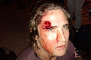 One of the many yet far from the worst injury from the recent police attack at  Occupy Oakland