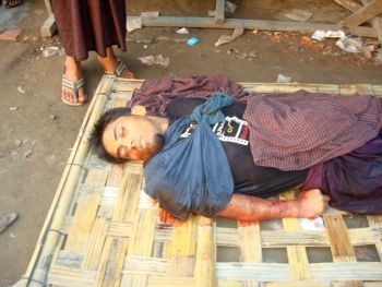 Rohingy man from Narzi village shot dead by police